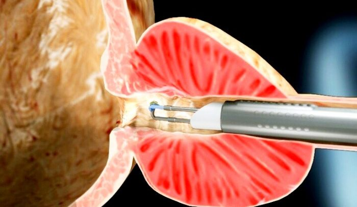 Удаление предстательной железы при раке: последствия