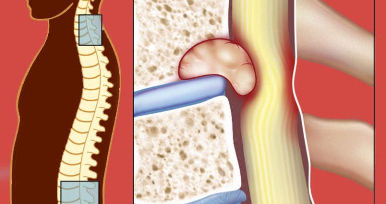 Злокачественные опухоли спинного мозга