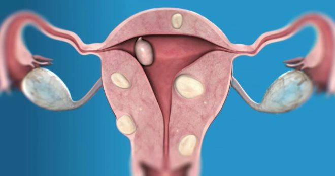 Рак эндометрия – причины и симптомы всех форм опухоли