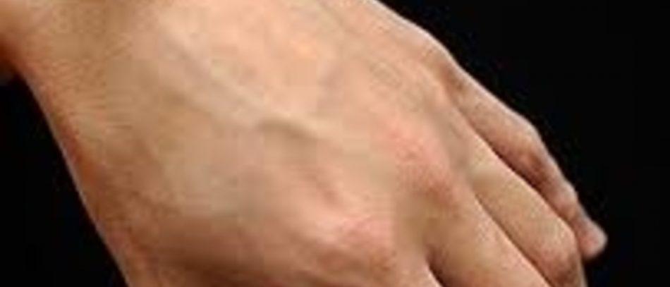 Гигрома кисти