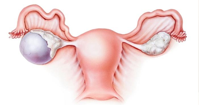 Стромальная лютеома яичника