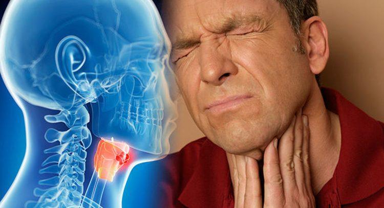 Что такое рак горла?