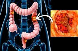 Колоректальный рак: 3 ранних признака, с которыми важно сразу обратиться к врачу