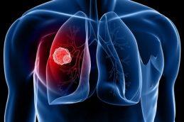 Как вылечить рак легких в Израиле?