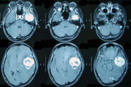Опухоль головного мозга у взрослых