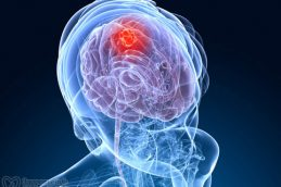 Противовирусная терапия помогает пациентам с раком мозга