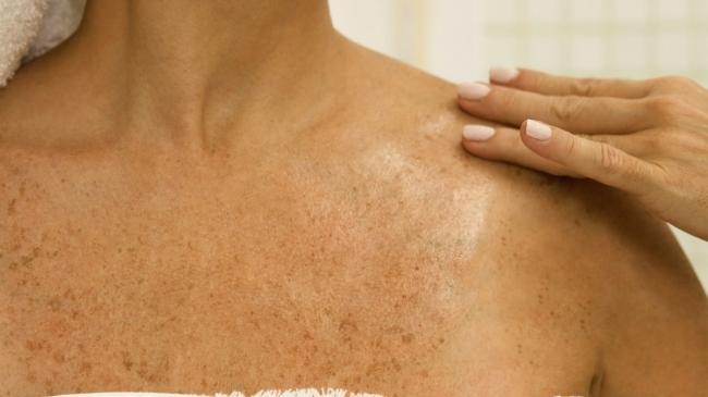 Признаки рака кожи
