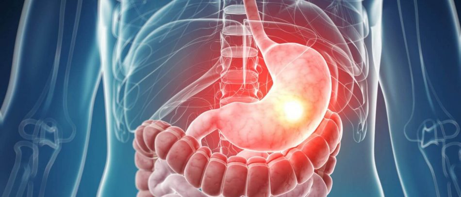 Онкомаркеры болезней пищеварительной системы