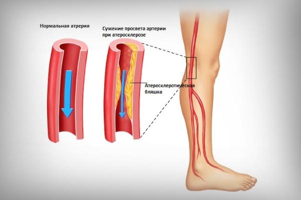 Как распознать и вылечить атеросклероз сосудов ног?
