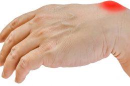 Шишка на запястье руки: причины и лечение