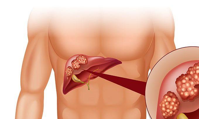 Рак печени: новые подходы лечения
