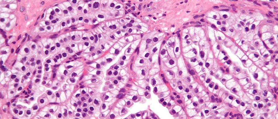 Папиллярная аденокарцинома почки