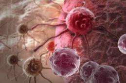 Израильские ученые обнаружили, что протеин S препятствует метастазированию рака
