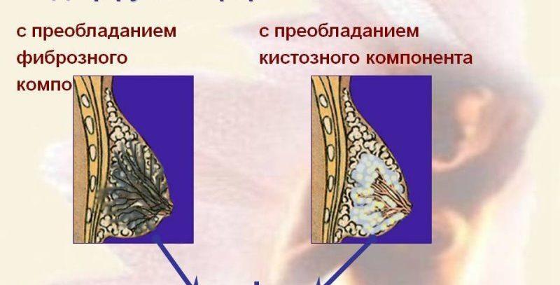Лечение фиброзной мастопатии