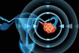 Стоит знать каждой женщине: ранние симптомы и лечение рака шейки матки