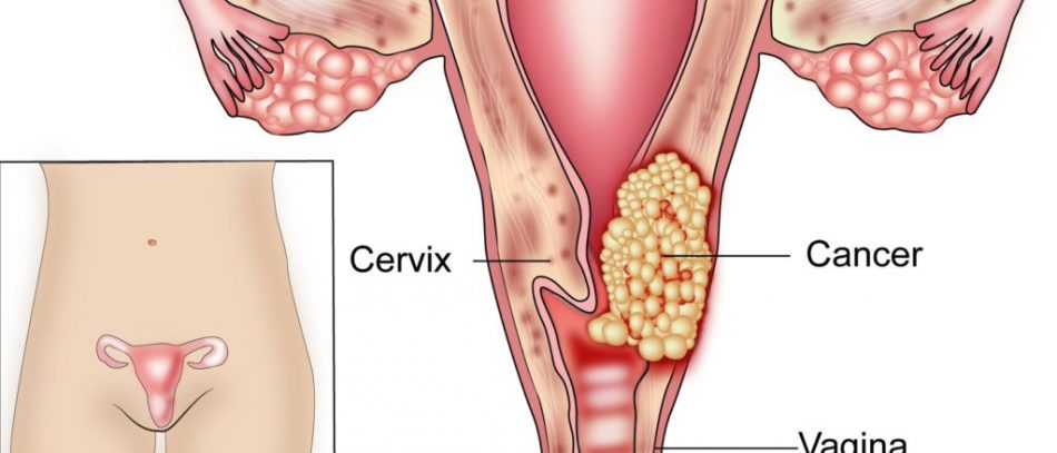 Ранняя стадия рака шейки матки
