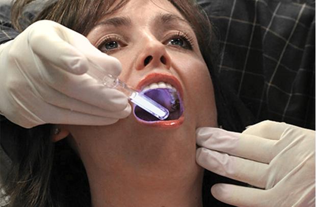 Рак слизистой полости рта. Лечение